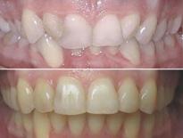 ortodoncia adultos zaragoza moliner 02