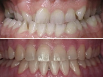 ortodoncia adultos zaragoza moliner 04