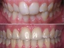 ortodoncia lingual zaragoza moliner