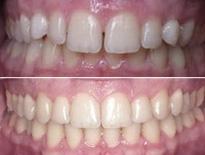 ortodoncia lingual zaragoza moliner 02