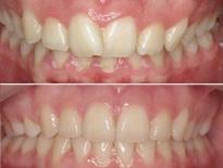 ortodoncia lingual zaragoza moliner 03