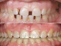 ortodoncia lingual zaragoza moliner 04
