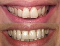 ortodoncia lingual zaragoza moliner 05