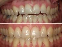 ortodoncia lingual zaragoza moliner 07