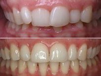 ortodoncia lingual zaragoza moliner 08