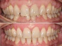 invisalign ortodoncia zaragoza moliner 02