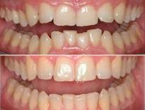 invisalign ortodoncia zaragoza moliner 03