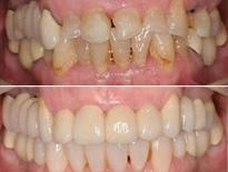 invisalign ortodoncia zaragoza moliner 04