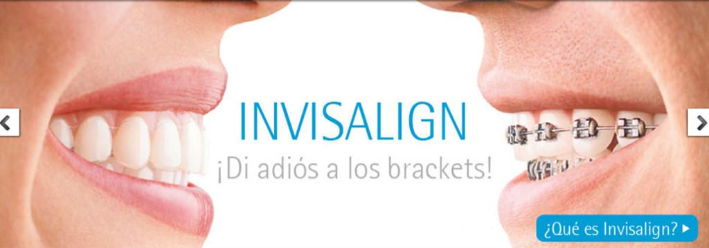 Ortodoncia Invisible, di adiós a los brackets