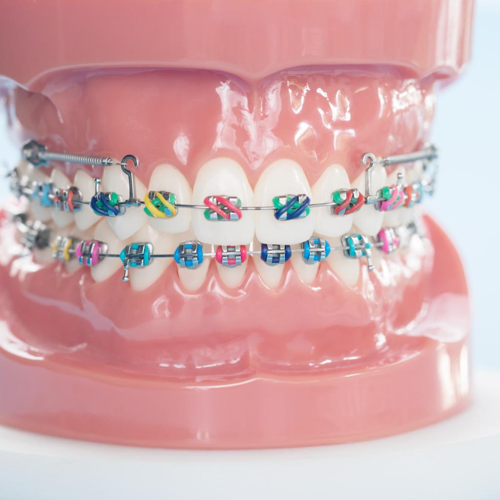 Higiene dental y cuidados con brackets