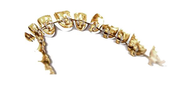 ortodoncia invisible lingual zaragoza2